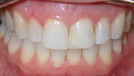 Closeup of misaligned smile