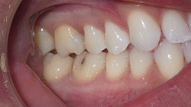 Closeup of natural looking repaired tooth