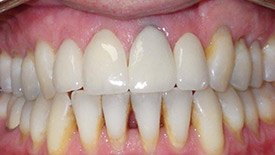 Closeup of teeth with receded gums