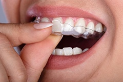 close up of person inserting their Invisalign aligner