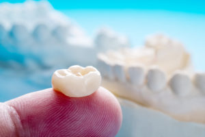 Why visit a dentist who can only offer traditional crowns when you can get a dazzling restoration in less than a day thanks to CEREC?