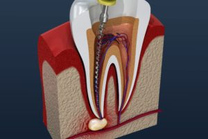 Digital image of root canal procedure